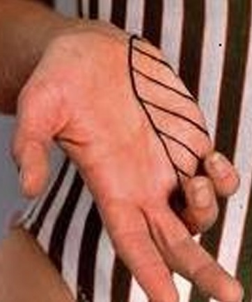 Area of sensation for the ulnar nerve