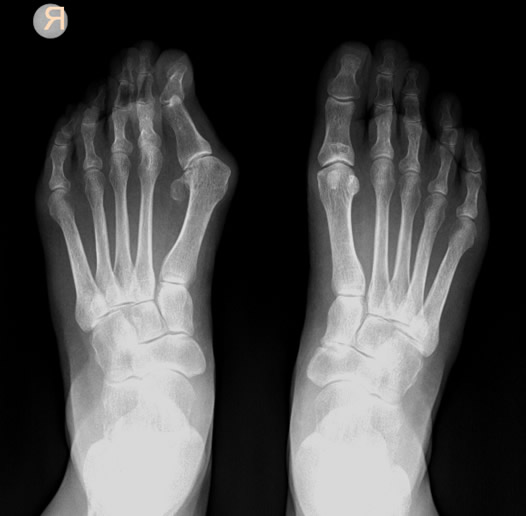 Pre-operation of a patient who has an advanced condition of Hallux Valgus